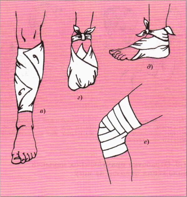 Повязки на ноги своими руками 89